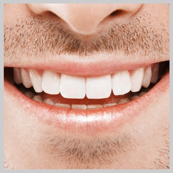 Zahnimplantate Pro und Contra