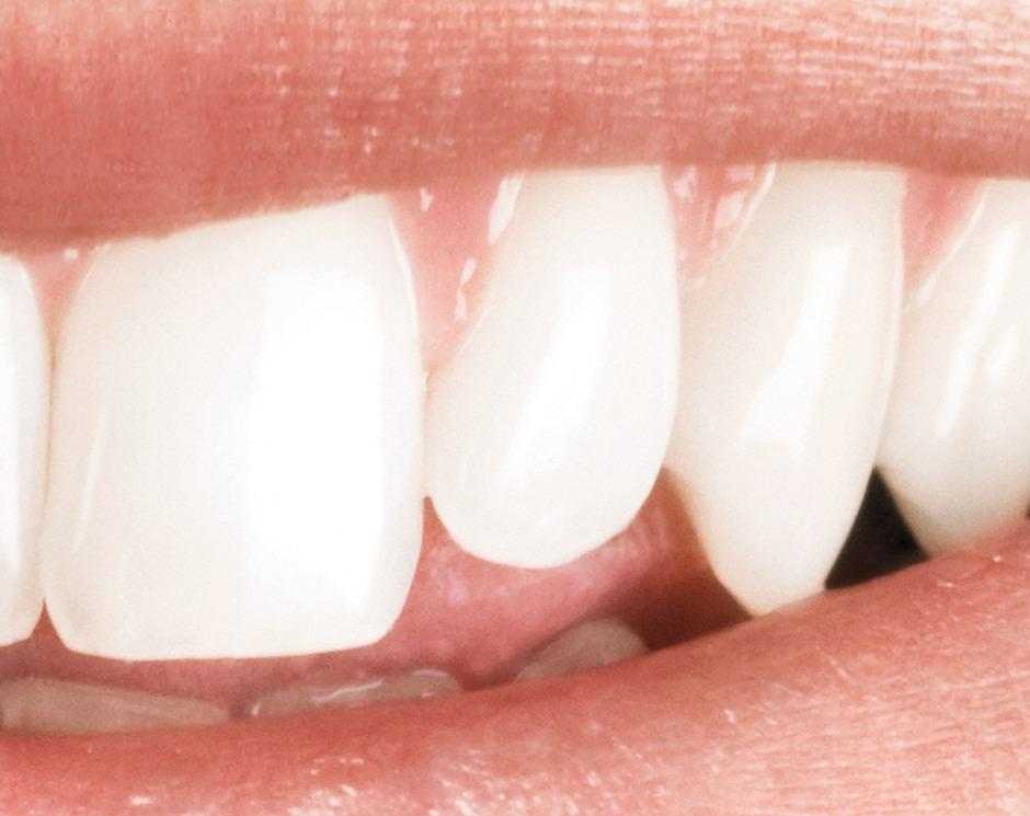 Zahnersatz sparen kann man lernen