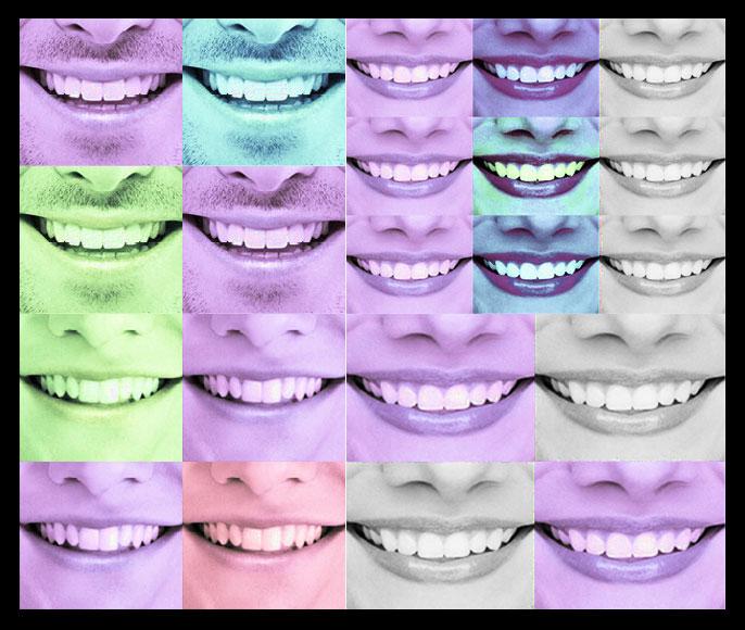 Zahnimplantate: Wege der Zahnersatz Finanzierung